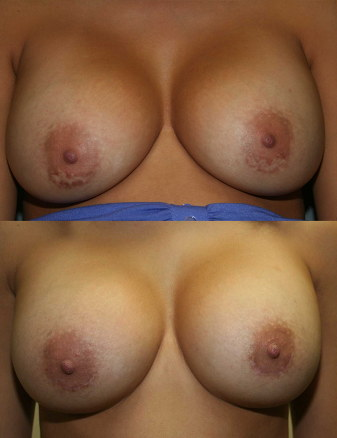 Breast Augmentation Scar Revision Before and After photo